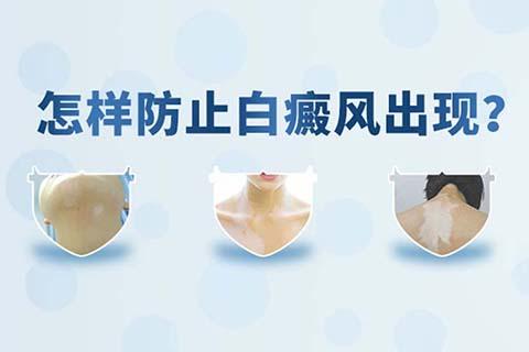 特发性白斑怎么治疗预防