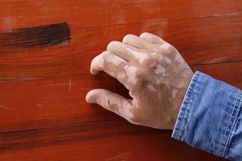 男性生殖器出现白斑是什么症状